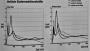 biomechanik:aktuelle_themen:projekte_ss17:max._bodenreaktionskraft.png
