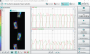 biomechanik:aktuelle_themen:projekte_ss18:visuelles_cueing_vogelperspektive.png
