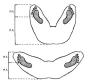 biomechanik:projekte:ss2020:fussstellung_sumo.png